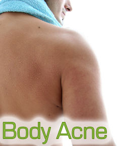 Body Acne information
