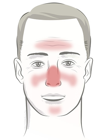 face_of_rosacea_male