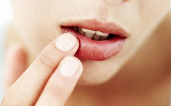 Are you addicted to lip balm?