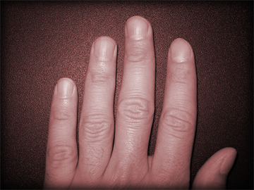 Are your fingernails trying to tell you something?