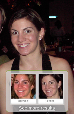 before and after zenmed rosacea treatment