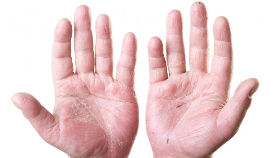 5 Tips to Take Control of Dermatitis