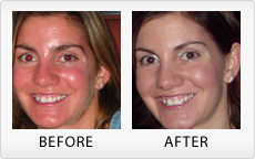 Banishing the Symptoms of Rosacea