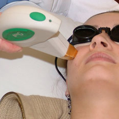 Laser Acne Removal – Is it for you?