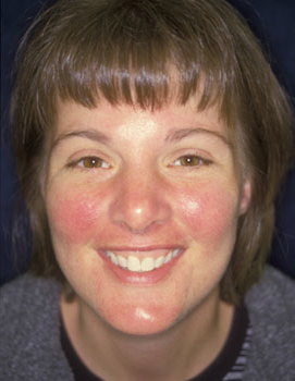 Treatment For Rosacea – My Story