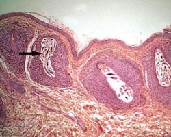 skin-Demodex-in-follicle