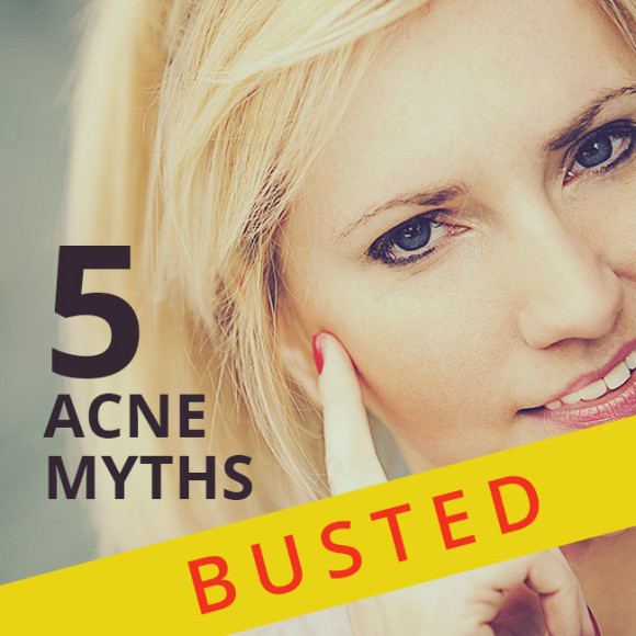 Five myths about acne