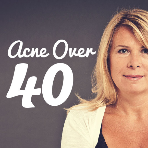 Tips on dealing with acne after 40