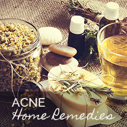 My favorite acne home remedies