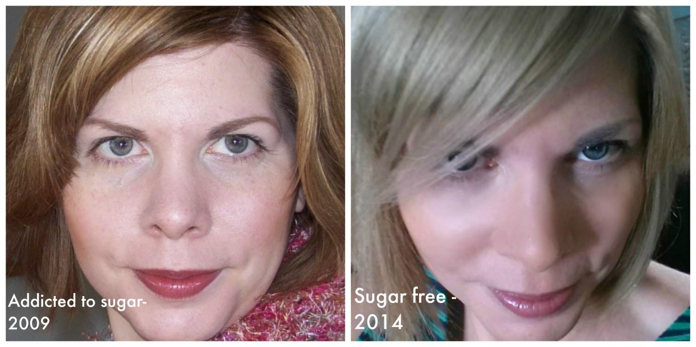 sugar free diet effects on skin
