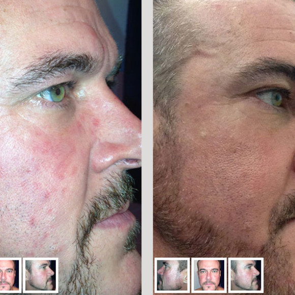 Tim's Rosacea story