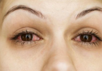 Bloodshot eyes? Why it could be Ocular Rosacea